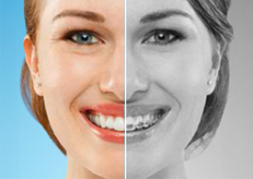 Before and After - Sand Canyon Dental - Dentist Irvine CA